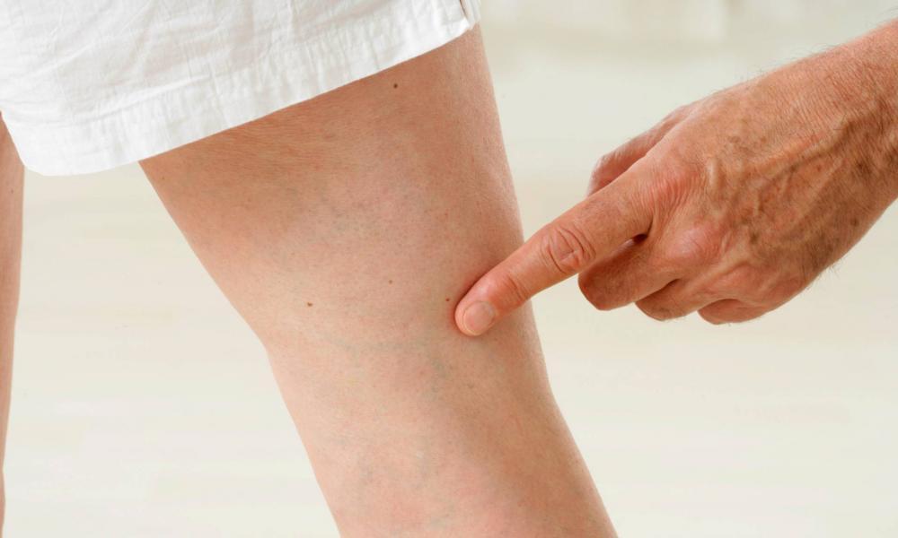 visszér a lábakon, mennyire ijesztő visszér kezelés kazahsztán