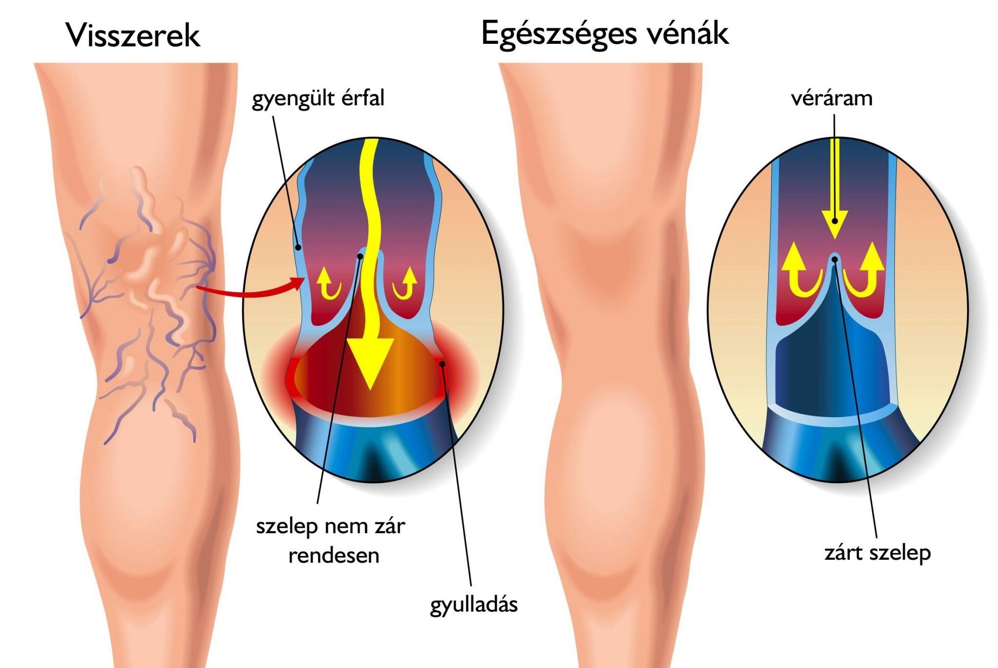 visszérgyógyászati torna az alsó végtagok visszértágulatához a láb visszaborul a visszér ellen