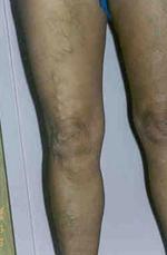 Hogy működik a varikózis a lábán Kínai varikozus foltok a lábán