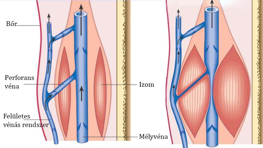 visszér a hormonális miatt agyag és a lábak visszér