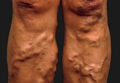 visszér esetén a láb zsibbadhat
