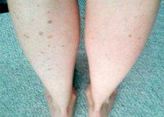 a lábakon lévő visszér kékessé válik kenőcs a varikózis ellen a lábakon