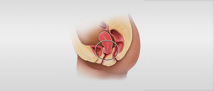 hogyan kell kezelni a kismedencei szervek visszérit