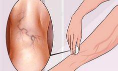 """""""7 hónap után eltűnt a daganat a fejemből"""" - Egészségtüköstonedesign.hu"""