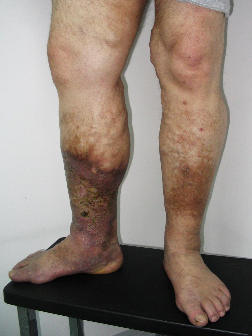 visszér ekcéma a lábakon kezelés
