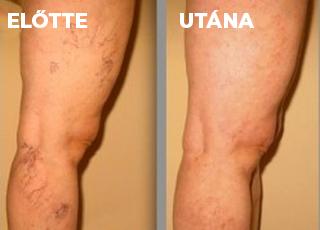 visszerek a lábakban műtét nélkül