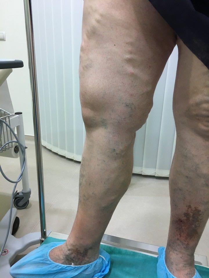 visszér a szkleroterápia előtt és után fotó