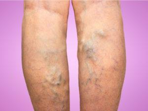 visszér kezelése rcho vélemények a visszér vérellátása