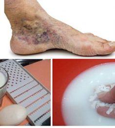 visszér gyorsbillentyű hogyan lehet megtisztítani a lábakat a visszérektől