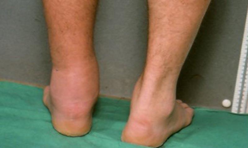 visszér a lábakon, mint akkor kötözni