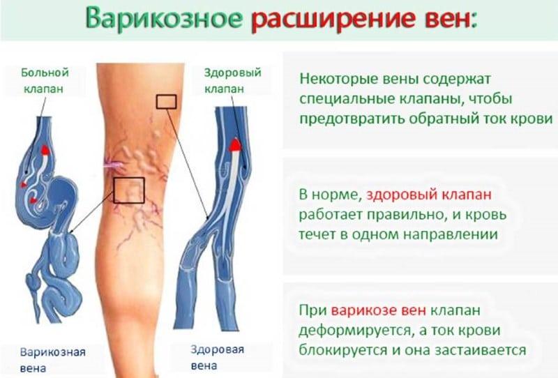 Küzdelem a lábak visszér ellen Biomat visszér