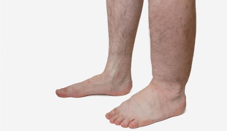 fájhat-e a láb visszérrel