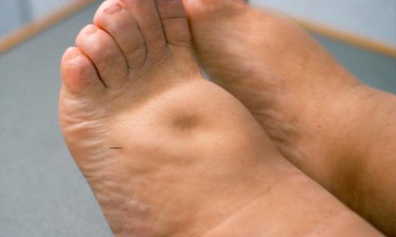 erősen duzzadt láb a visszerek visszér és lábfájdalom elleni gyógyszerek