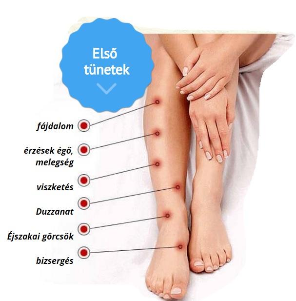 a varikózis kialakulása és kezelése a lábakon