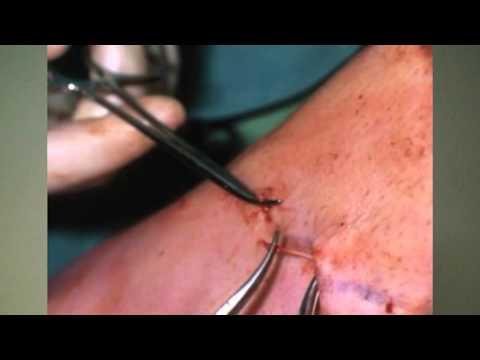A heparin kenőcs segíti a lábak varikozusát