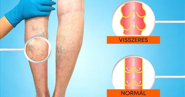 visszér, ahogy az orvost hívják a kezdeti visszér tünetei a lábakon