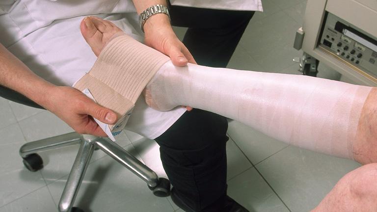 hogyan lehet bekötözni a visszeres terhes nők lábát
