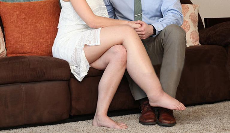 visszér és az egyik láb duzzanata
