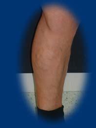 visszér lézeres műtét mi ez visszerek a terhes nő lábain