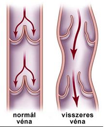 Ezért amputálnak háromszor annyi lábat Magyarországon, mint máshol - stonedesign.hu