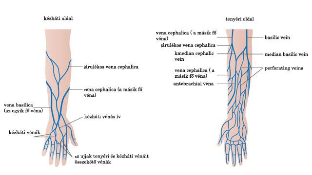 artériás visszér