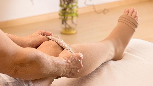 Dagadt lábak és allergia