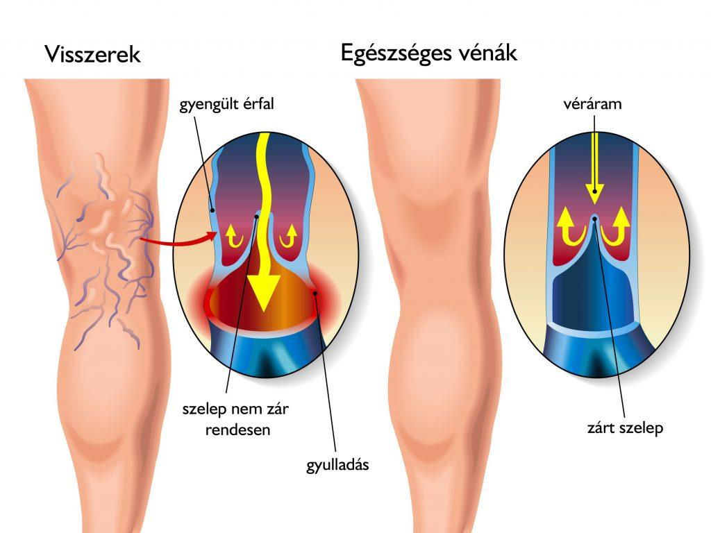 fotó a perineum visszér