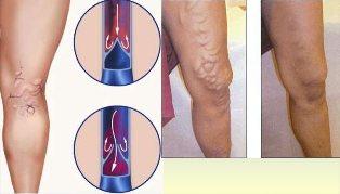 hogyan kell kezelni az előrehaladott visszerek a lábakon