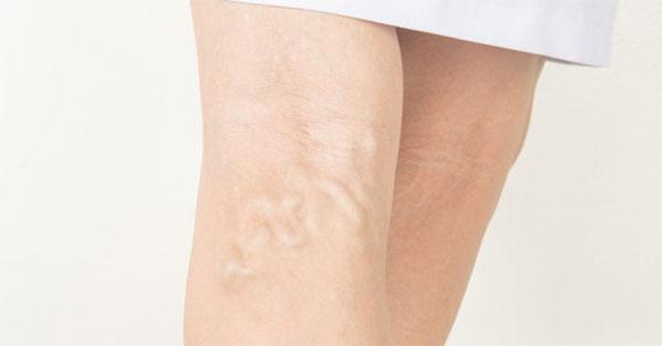 visszér csökkent nyomás alatt foltok a visszér lábain