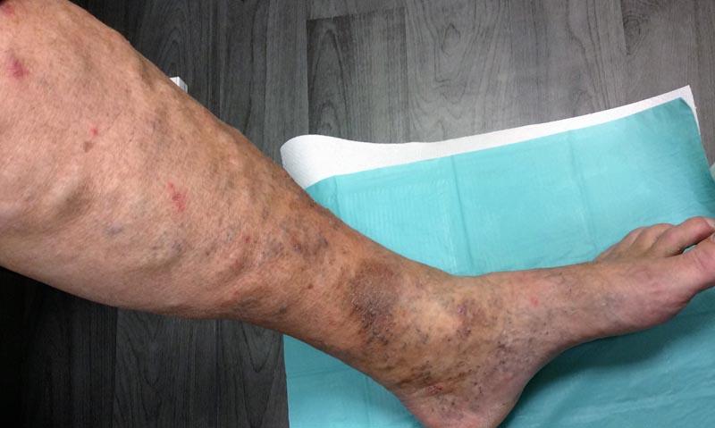 foltok az alsó lábszáron visszérrel piócák visszahúzódási technikái