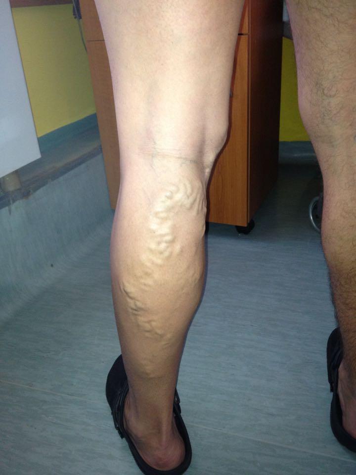 mumiyo a visszér kezelésében visszér a lábakon lézeres műtét
