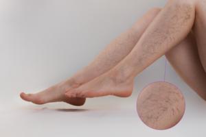 visszér kezelése rcho vélemények gyakorlatok a lábszáron visszeres