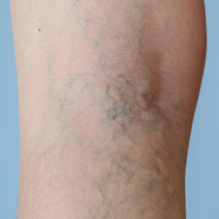 visszérműtét a láb videón