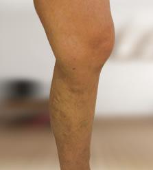 hogyan kell kezelni a visszér és hol kenőcs a lábak visszeres viszketésére