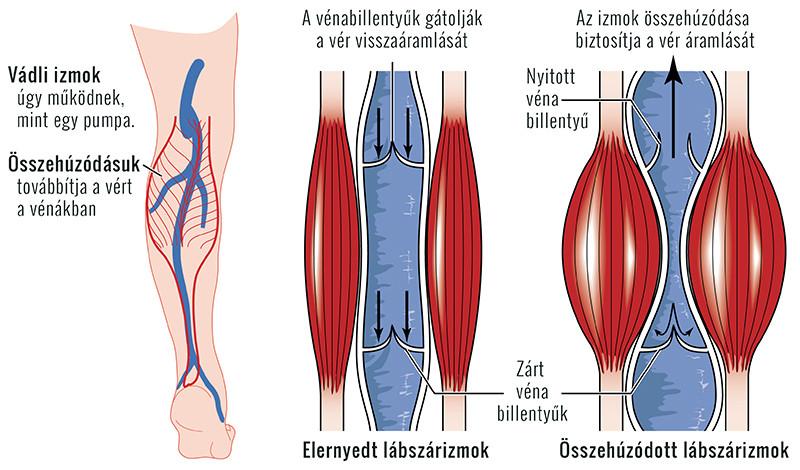 a bal láb varikózisát okozza