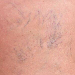 a bőr elvékonyodása visszeres