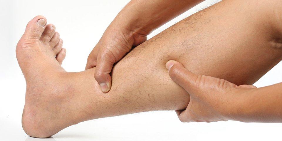 a kezdeti visszér tünetei a lábakon