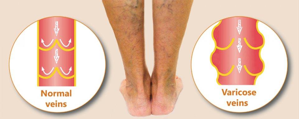 a láb visszér gyógyítható