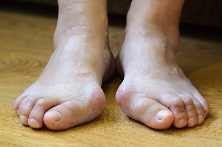 a lábak visszérgyulladásának kezelése abakanban