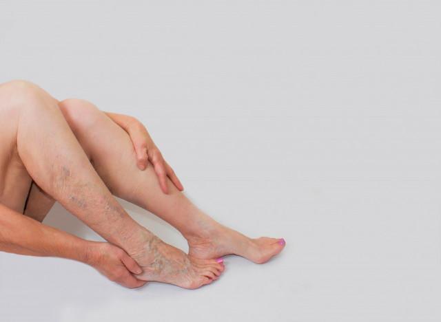 retikuláris visszér szkleroterápia