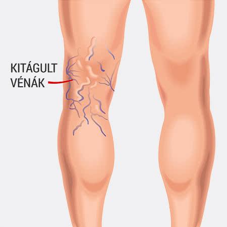 mi a veszélye a lábak varikózisának szédülés műtét után visszér