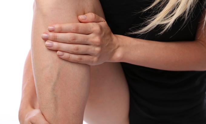 mezei zsurló visszér ellen thrombophlebitis visszér megelőzése