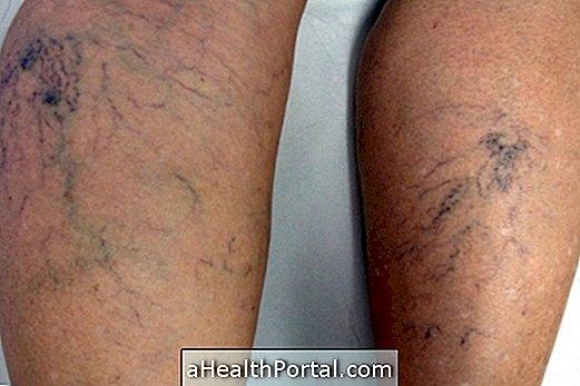 Fejlődési okai, tünetei és kezelése az alsó végtagi varixos vénákban - Zúzódások