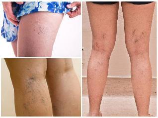 visszér a lábakon a leghatékonyabb kezelés