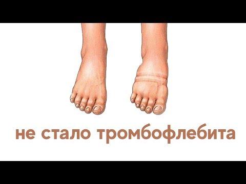 Visszértágulati vénák kezelése otthon: hatékony módszerek - Megelőzés