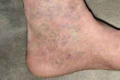 apiterápia visszér ellen miért fáj a láb mely visszér