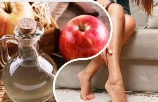 Hogyan kell használni almaecet visszeres a lába?