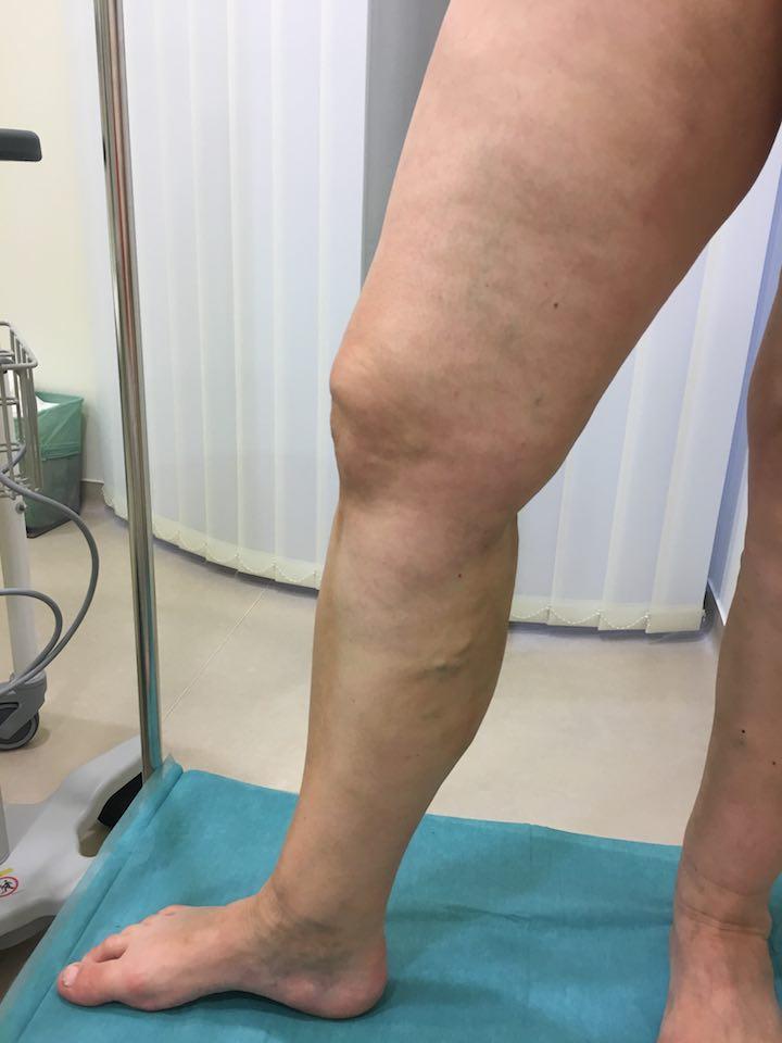 visszér fotók a műtét előtt és után apiterápia visszér ellen