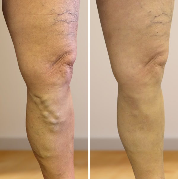 visszérműtét a láb videón amit nem szabad visszeresen alkalmazni
