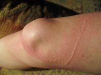 adenomyosis és visszér kezelés